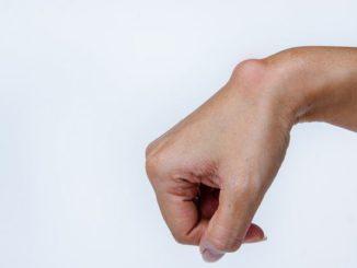 Ganglion nadgarstka – wchłonięcie i odszkodowanie