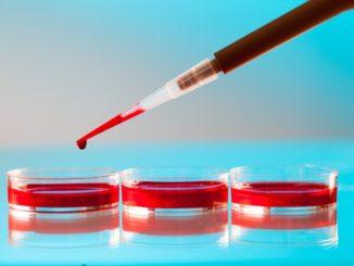 Monocyty powyżej normy – co to znaczy?