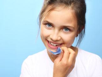 Tyłozgryz – leczenie wady zgryzu u dzieci i dorosłych