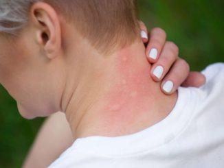 Opuchlizna po ugryzieniu owadów – jak łagodzić?