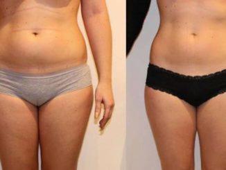 Kriolipoliza – innowacyjny pogromca tkanki tłuszczowej!