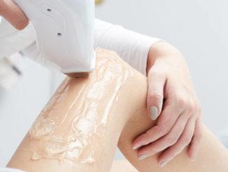 Laserowe usuwanie owłosienia jest bezpieczne, szybkie i trwałe. Na czym polega depilacja laserowa?