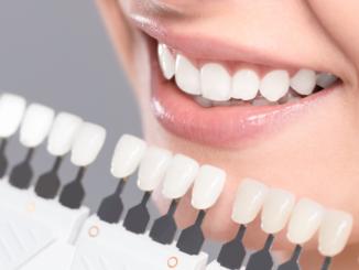 Wybielanie zębów a aparat ortodontyczny – czy warto wiedzieć?