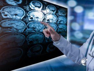 Stwardnienie zanikowe boczne – jakie są pierwsze objawy choroby?
